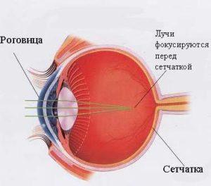 Очки при близорукости носить необязательно?