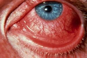 диплобациллярный конъюнктивит