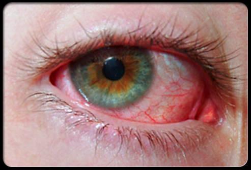 Причины воспаления глаз