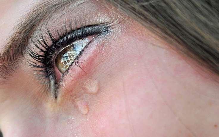 Причина повышенного слезотечения на улице