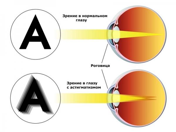 Самая эффективная зарядка для глаз при близорукости